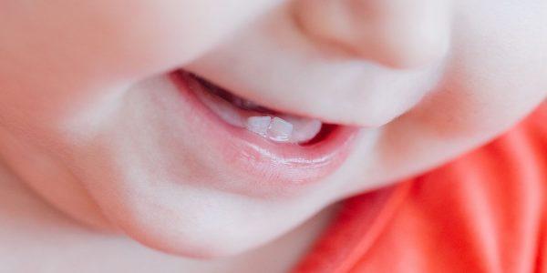 ząbkowanie